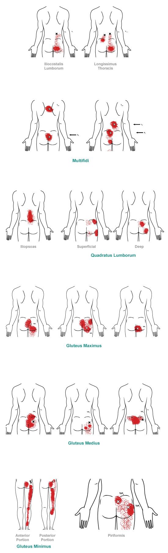 Патерны боли в нижней части спины